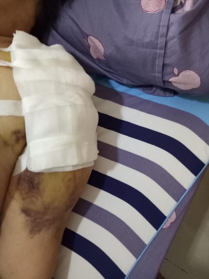 dịch vụ Rửa vết thương tại nhà, Dịch vụ thay băng tại nhà,Cắt chỉ vết thương tại nhà 24/24