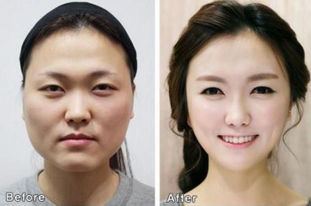 Trước và sau Dịch Vụ Phẫu Thuật Thẩm Mỹ Tạo Hình Thành Bụng, Mũi, Môi.