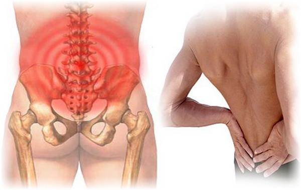 Các huyệt đạo cấy chỉ khi dây thần kinh chưa bị chèn ép: Cấy chỉ chữa đau lưng - Phương pháp cấy chỉ chữa đau lưng hiệu quả !