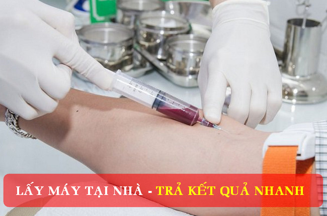Dịch vụ lấy mẫu xét nghiệm tại nhà TPHCM - Lấy kết quả nhanh